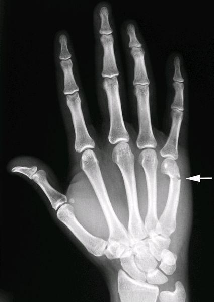 Boxer 39 s fracture step 2 pinterest radiologie membre sup rieur et imagerie m dicale - Fracture main coup de poing ...