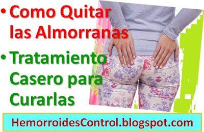 Como Quitar las Almorranas Externas sin Cirugía: Tratamiento Casero ClickAquí➡ http://HemorroidesControl.blogspot.com/2016/04/como-quitar-las-almorranas-externas-sin-cirugia.html. Hemorroides Control - Cómo curar las #Hemorroides y #Almorranas de manera natural