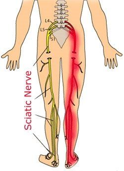 Back Pain Down Leg Pain starts in my left rear-end and travels down my leg. Sometimes I ...