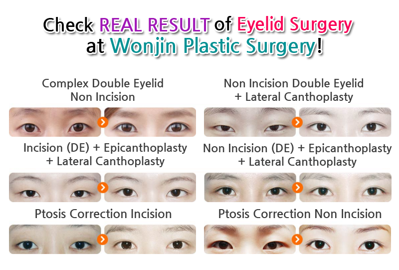Pin by Wonjin Beauty Medical Group on Korean Eye Plastic