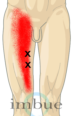 Front and Inner Thigh Pain | Adductor Magnus: This very large ...