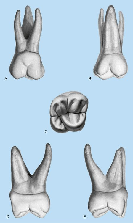 Maxillary right first molar | TEETH | Pinterest | Dental and Dental ...