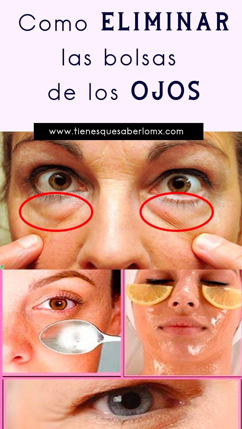 Como eliminar las bolsas delos ojos | Bolsas de ojos