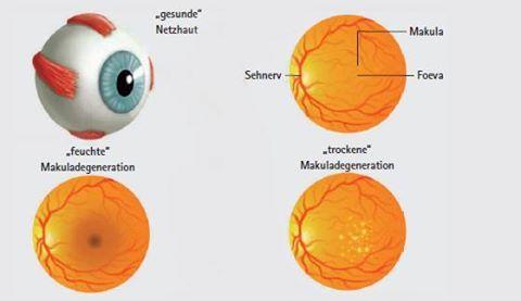 #Augenakupunktur bei der #Makuladegeneration. Bei der Augenakupunktur nach #Boel werden Akupunkturpunkte verwendet, die sich speziell bei chronischen #Augenerkrankungen als wirksam erwiesen haben: https://www.facebook.com/PraxisMichaelaNoll/posts/386497988200842:0   #Glaukom #Netzhautablösung #Altersweitsichtigkeit #Katarakt