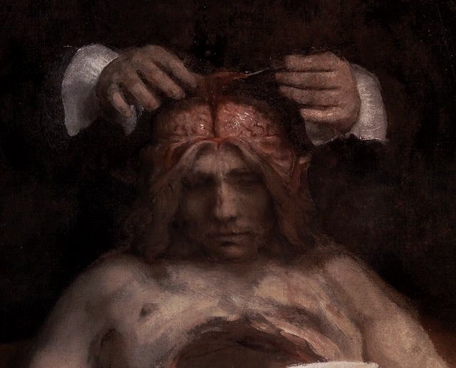The Anatomy Lesson of Dr. Jan Deyman (detail) by Rembrandt van Rijn ...
