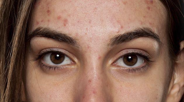 3 ingredientes certeiros para tratar a acne: dermatologista ensina receitinhas caseiras