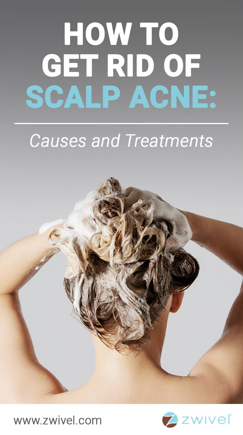 How to get rid of scalp acne causes and treatments