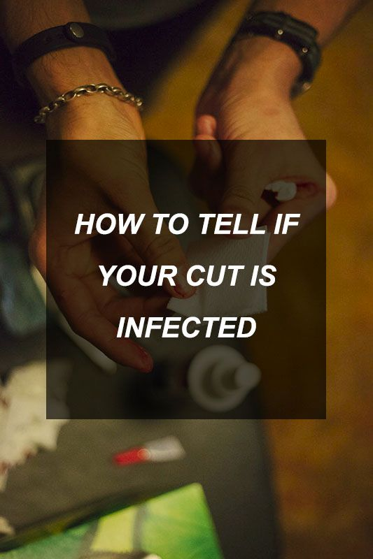 How to Tell If Your Cut or Scab Is Infected (Signs of Infection