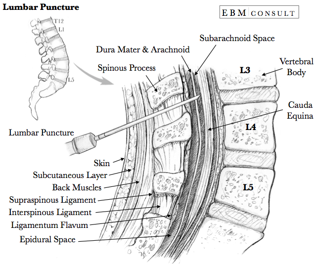 Lumbar Puncture Anatomy Needle Placement Image | Medical Procedures ...