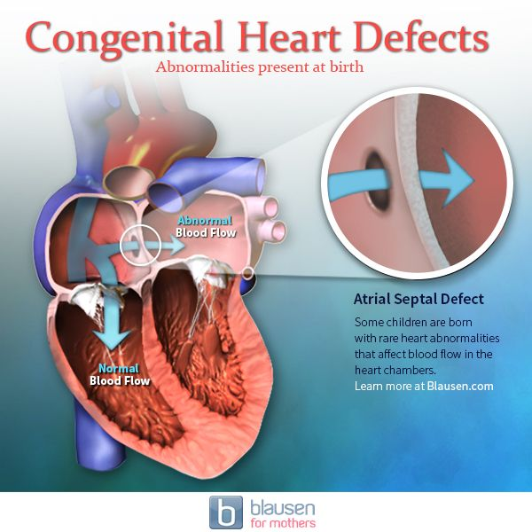 Learn about anatomy abnormalities such as congenital heart defects ...