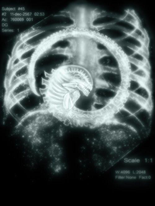 chest burster X-ray