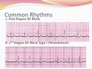 12 Lead EKG Interpretation