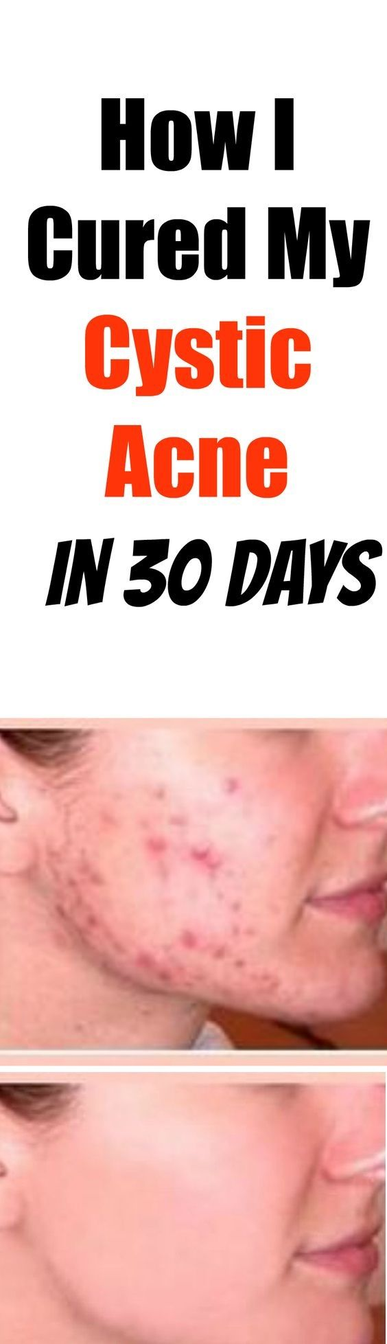 How I Cured My Cystic Acne In  Days  Fitness  Pinterest  Cure
