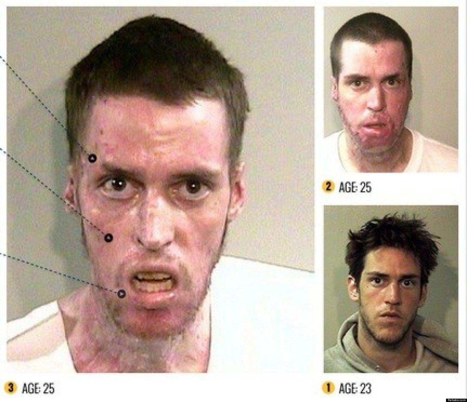 Crystal Meth Faces Before and After If you are considering a family dentist click on the image to learn more.