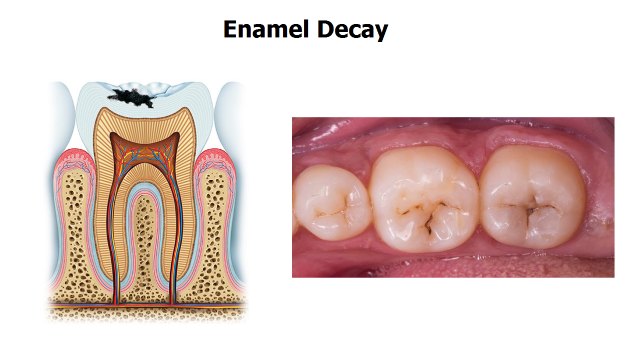 5 Stages Of Tooth Decay Tooth Caries Dental Decay Tooth Cavity