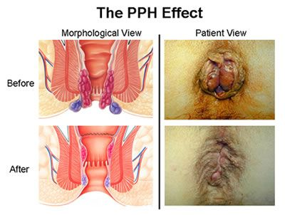 Bristol Laparoscopic Surgery Pph Amp Starr Health