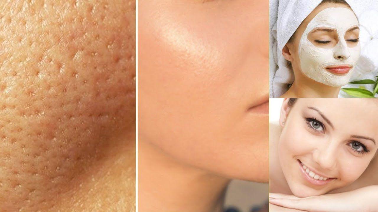 Aprenda Esta Receita Para Fechar Os Poros E Ter Uma Pele Lisinha