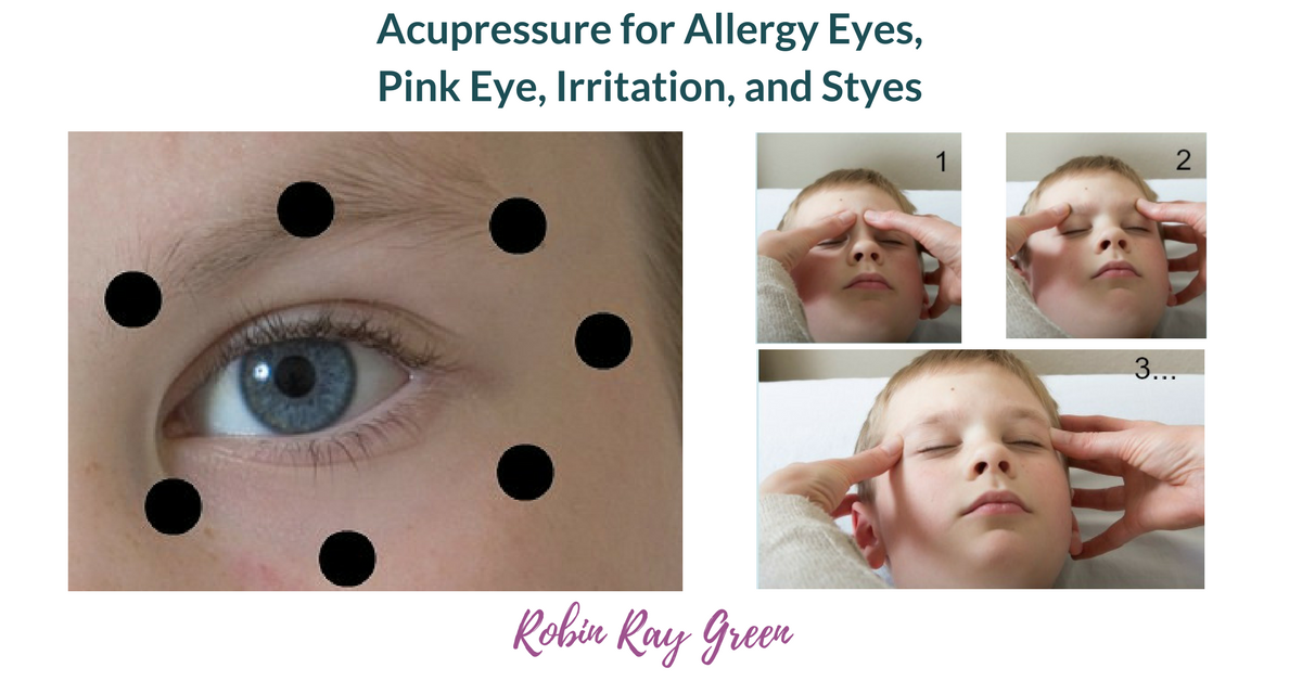 Acupressure for Styes, Allergy Eyes, Pink Eye and other ...
