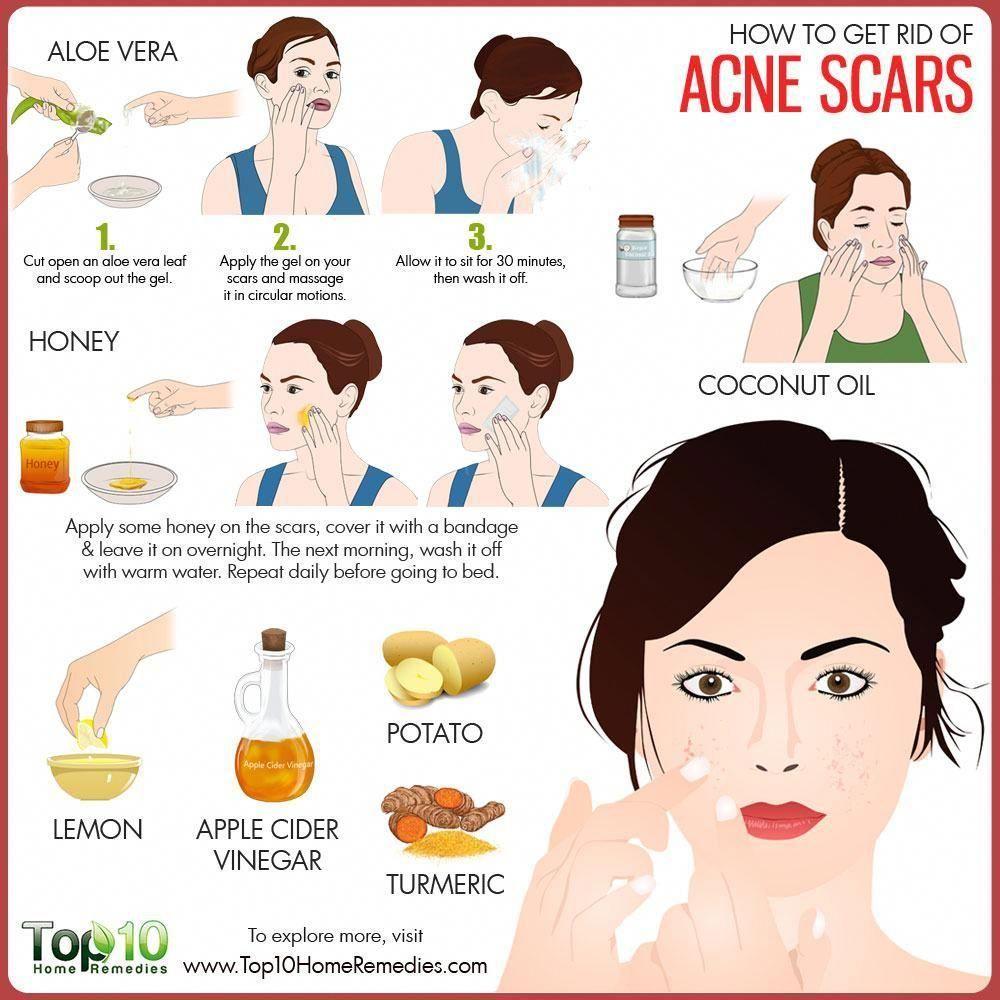 Pin On Acne Scars Diy