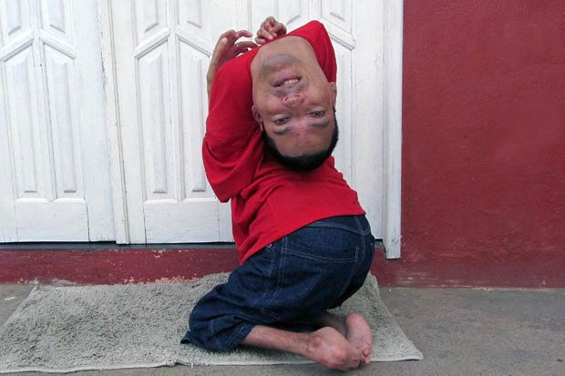 Inspiring story of a man born with upside down head.