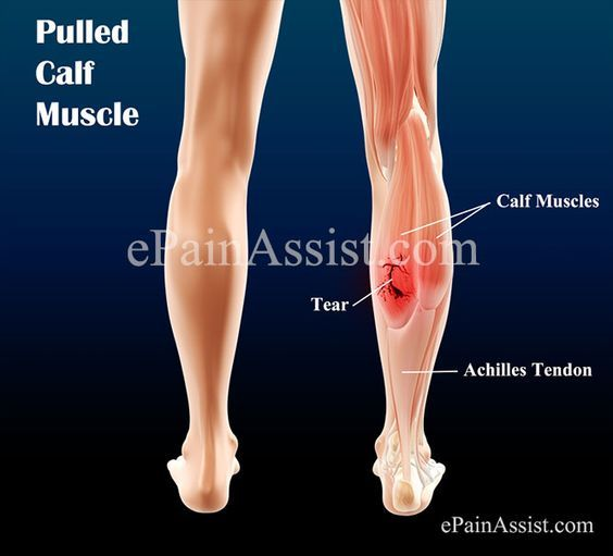 Pulled Calf Muscle | Pulled calf muscle treatment, Pulled ...