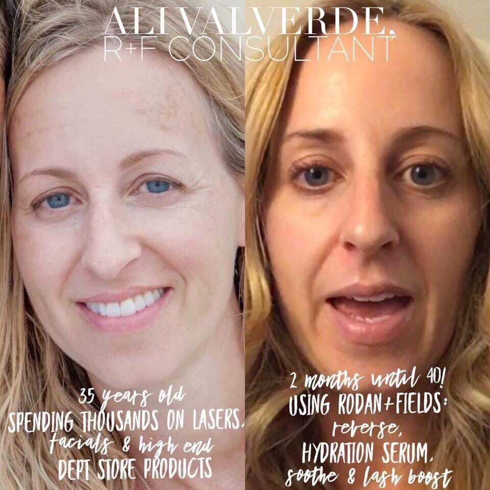 When You Age Backwards Literally This Year Is The Big 4 0 For Me And My Skin Has Never Be Reverse Aging Skin Skin Care System Rodan And Fields Reverse