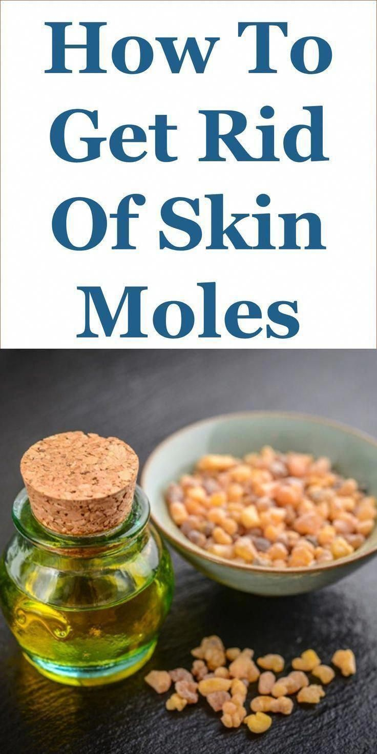 How to get rid of skin moles 27 home remediesthis guide