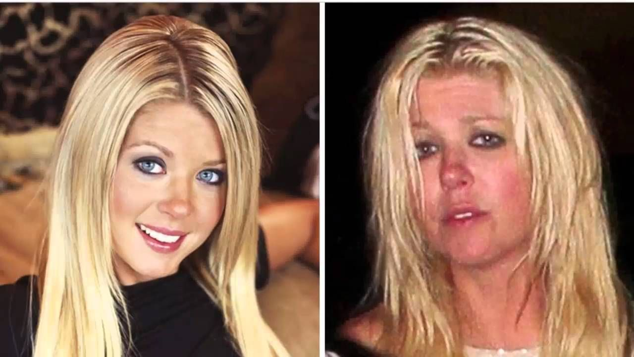 top 20 shocking photos of celebs before and after drugs | top 20