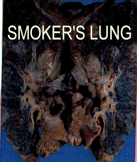 Cause and effect essay smoking cigarettes
