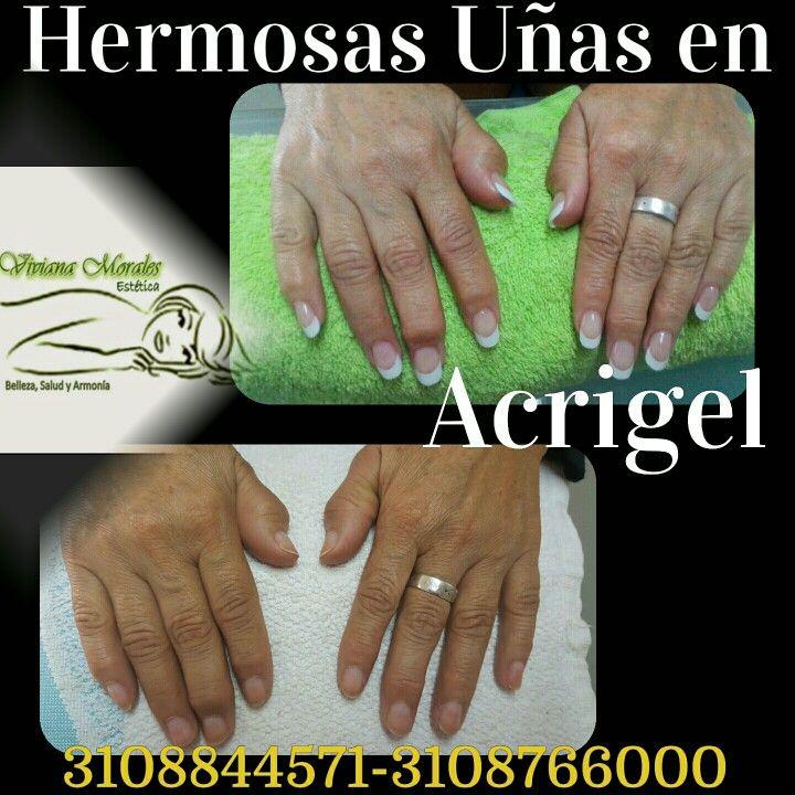Acrigel es la técnica de extensión de uñas que sirve cómo un ...