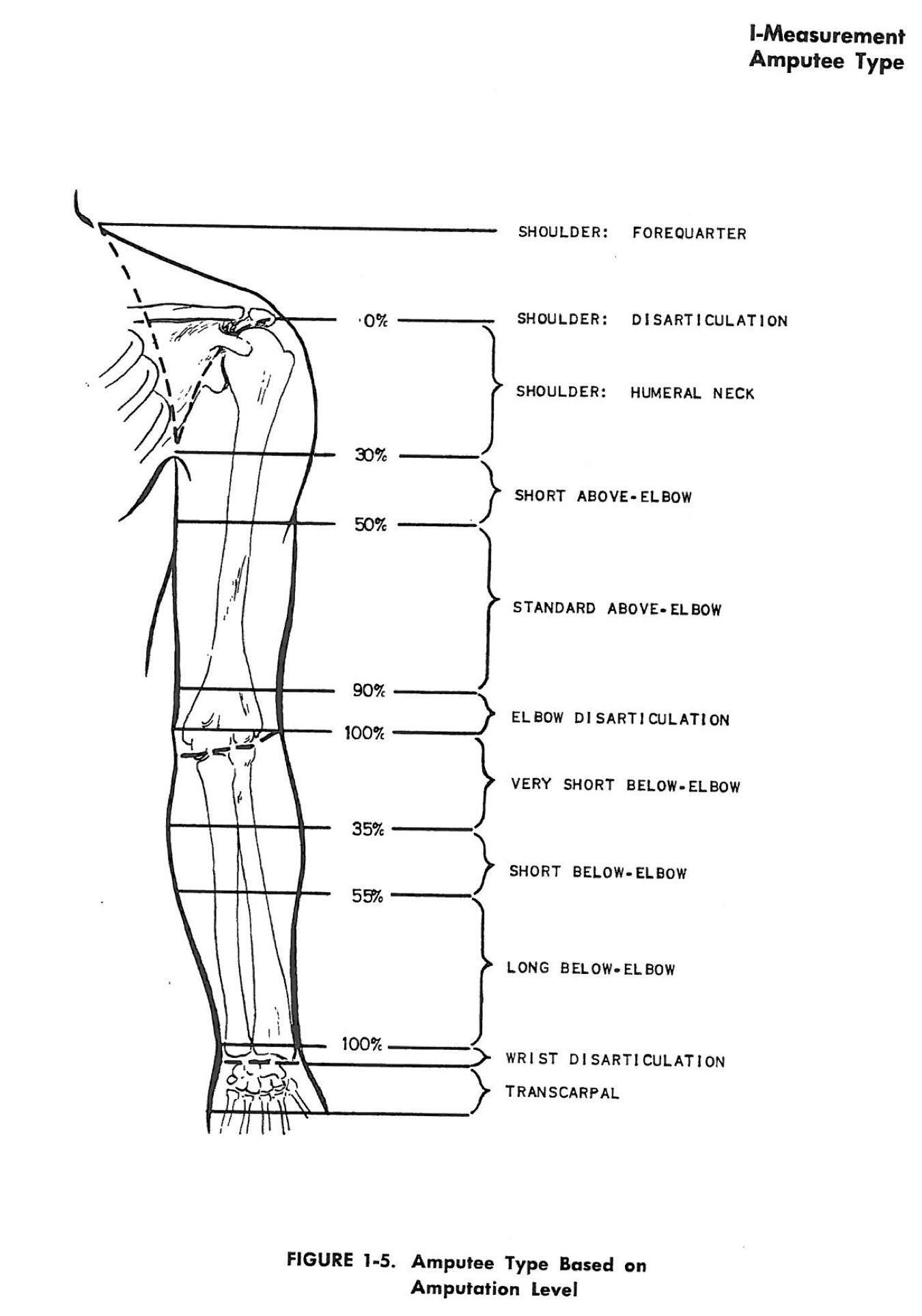 hight resolution of amputee nomenclature by level of upper extremity amputation