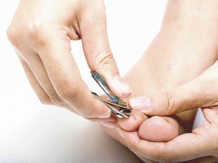 how to get rid of an ingrown fingernail
