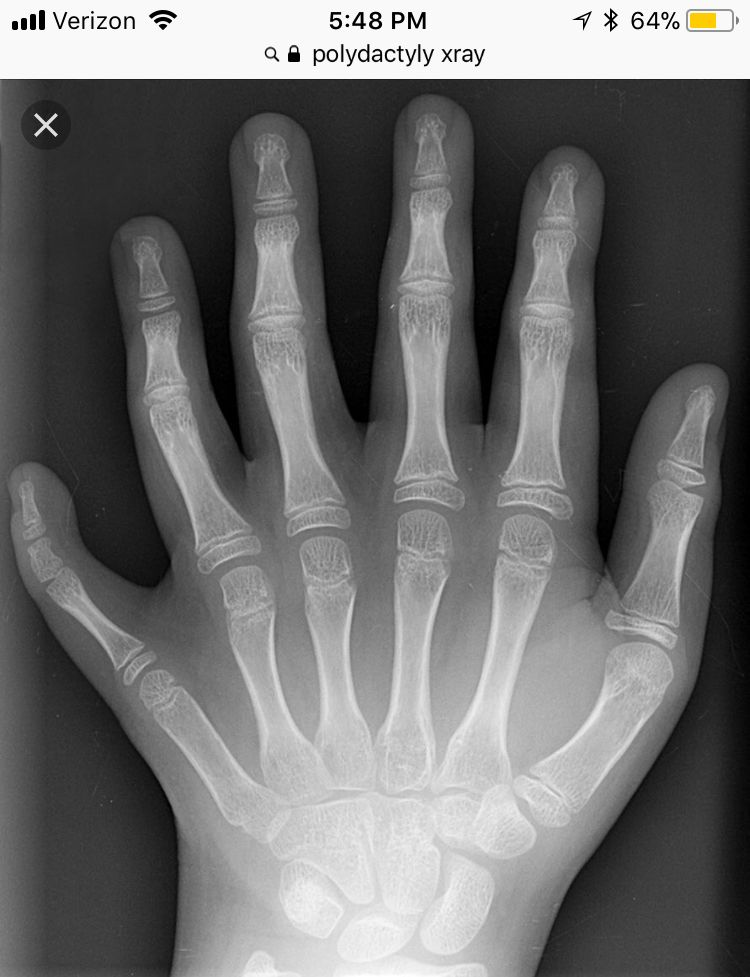 Polydactyly   X-Rays/Anatomy   Pinterest   Radiology and Rad tech