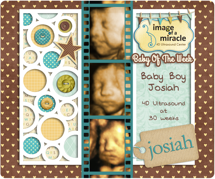 4 9 14 Baby Of The Week Baby Boy Josiah 30 Week 4d Ultrasound At