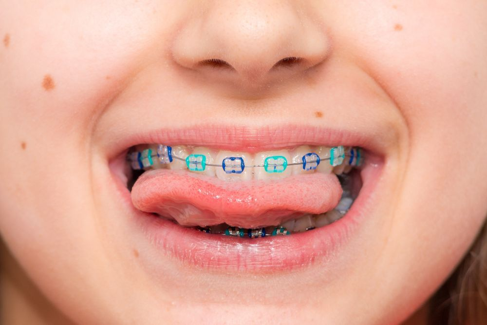 Having Fun With Colored Braces