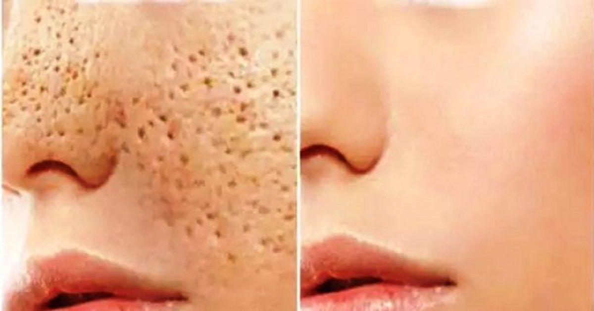 Anuncios Los poros son pequeñas aberturas que le permiten que la piel respire. Son casi imposibles de ser vistos a simple vista, pero pueden crecer en tamaño a medida que envejecemos. Los poros abiertos y agrandados estéticamente se ven muy desagradables y pueden arruinar su apariencia, por lo que todo el mundo quiere resolver el ...