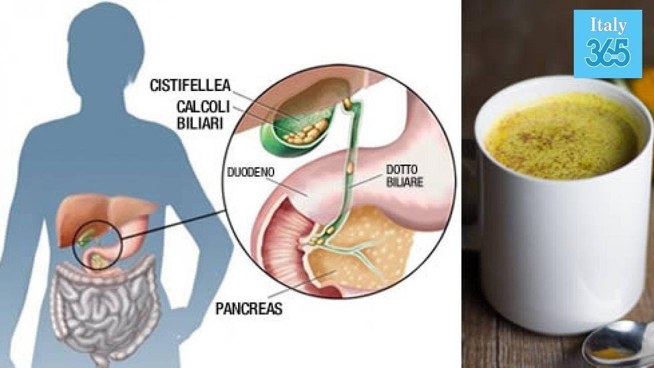 dieta morbida per calcoli alla cistifellea