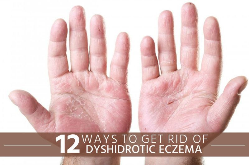 How To Get Rid Of Dyshidrotic Eczema Home Remedies For Eczema