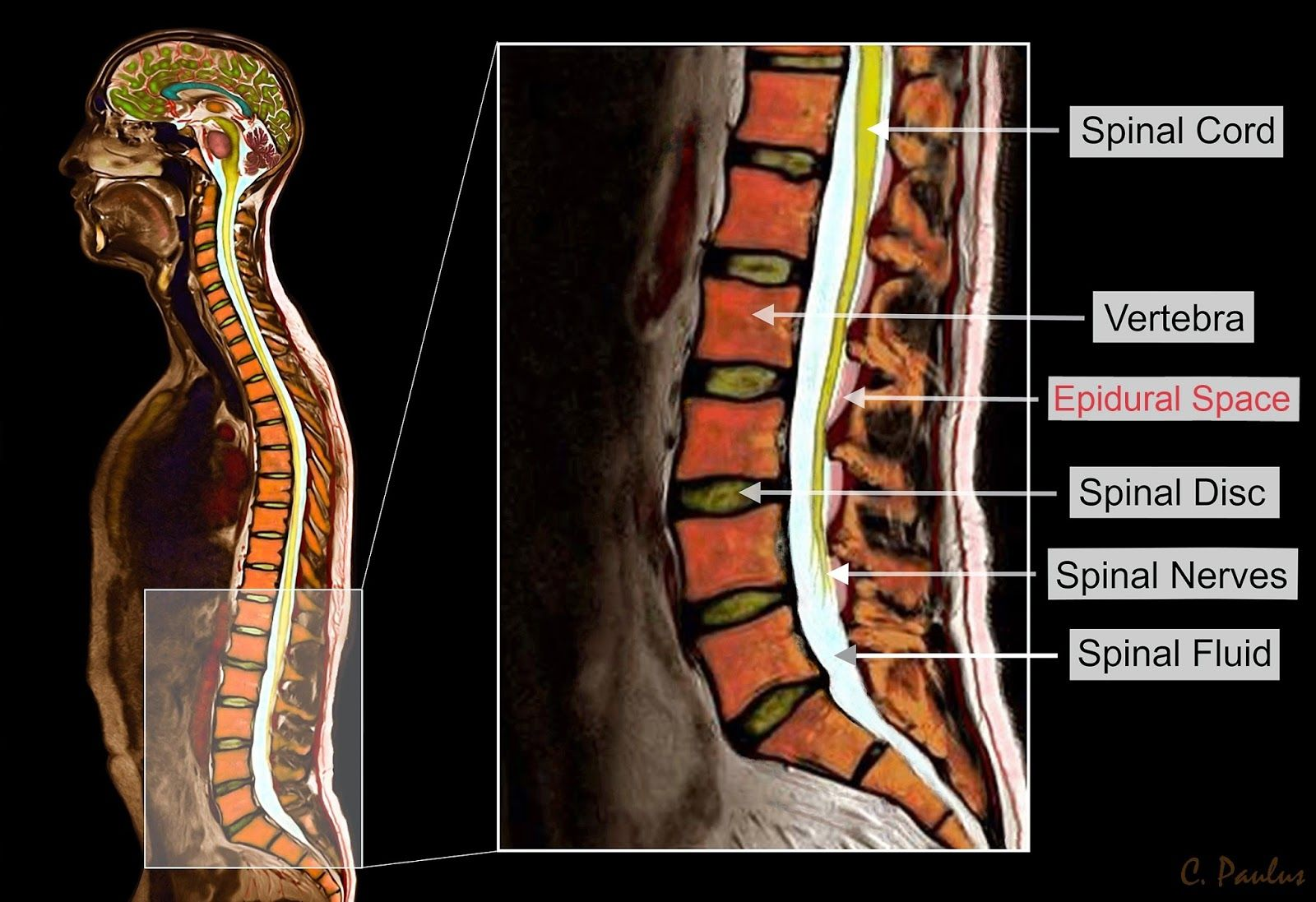 Color MRI Image Lumbar Spine Anatomy | Mri Scans | Pinterest ...
