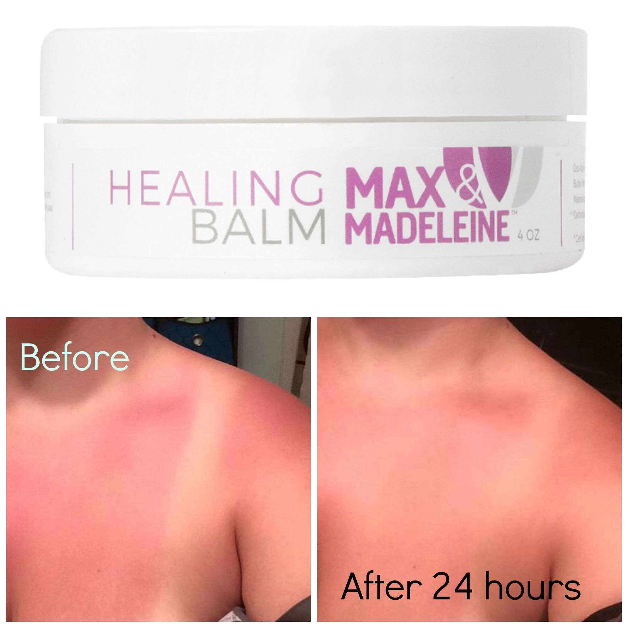 #healing #skincare #organic #nontoxic  Look at my results!! Bye Bye sunburn!