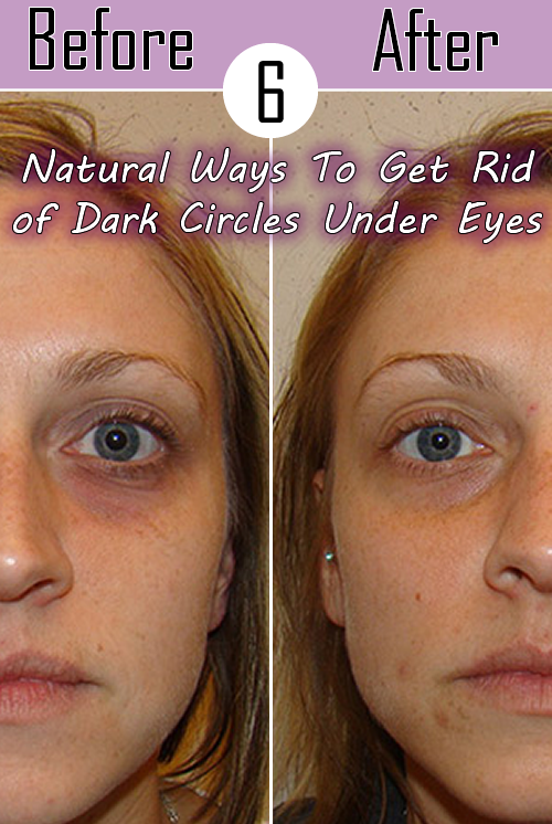 How To Get Rid Of Black Spots Under Eyes Naturally