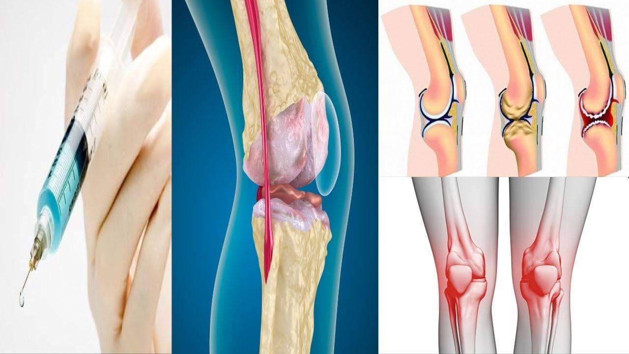 علاج احتكاك الركبة جابر القحطاني والطب النبوي مجرب سريع المعفول موسوعة Natural Medicine Medicine Health