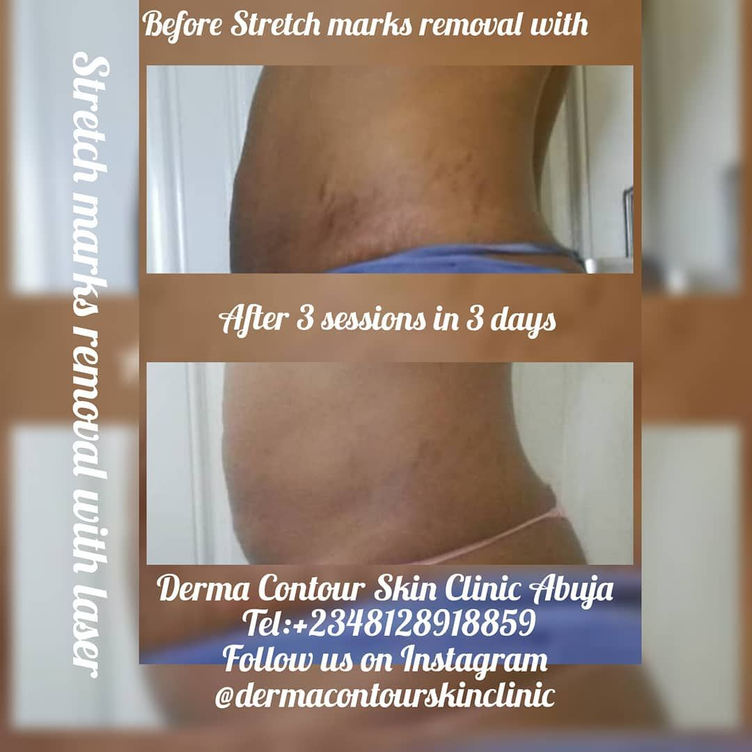 Stretch Mark Removal With Laser At Derma Contour Aesthetic And