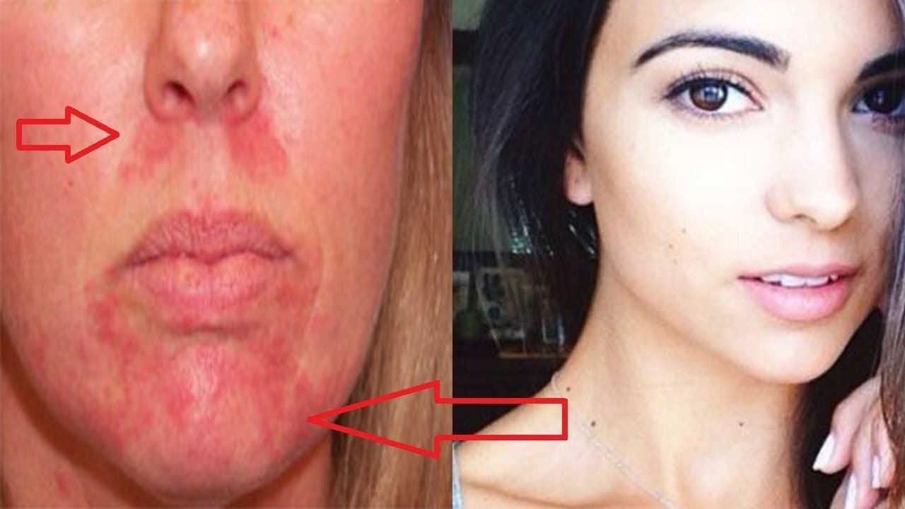 Home remedies for perioral dermatitis get rid red bumps