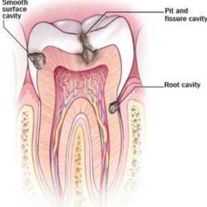 b980711eca3163a1bce157cc322efc9f - How To Get Rid Of Tooth Pain After A Filling