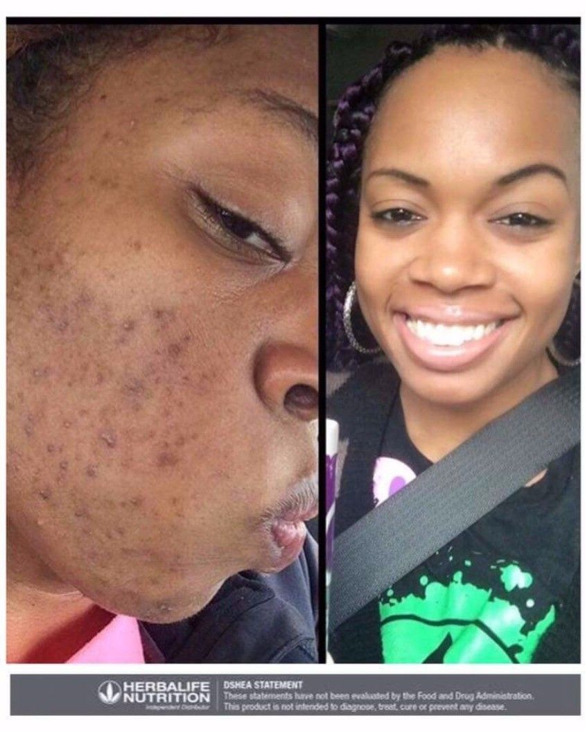 Do You Have Acne You Can Have Clear Skin Acne Beauty Skin Skincare Health Deals Healthy Organic Skincare Te Healthy Skin Care Acne Skin Clear Skin