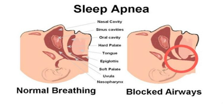 does cpap machine stop snoring