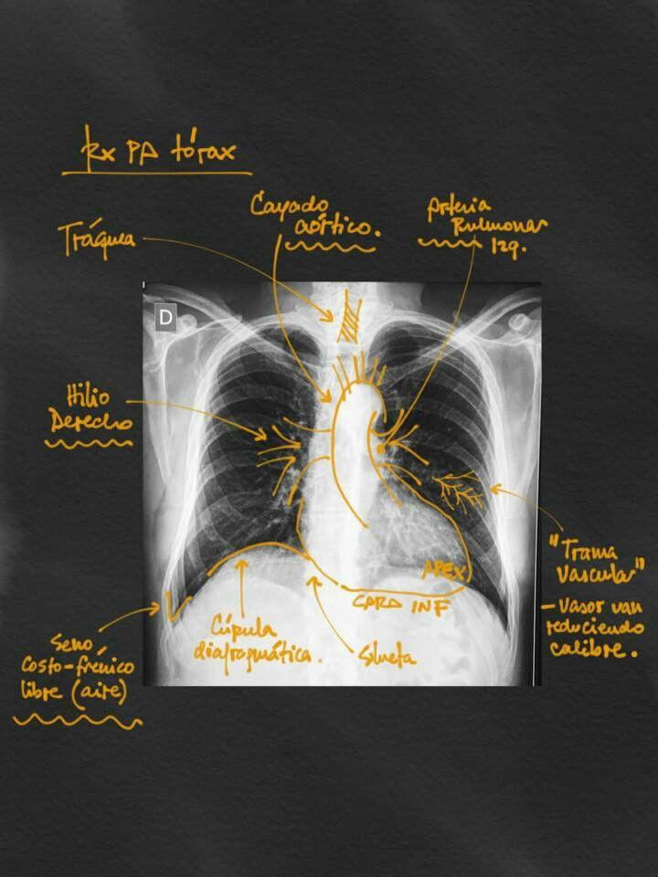 Anatomía en radiografía de tórax PA | Anatomía | Pinterest ...