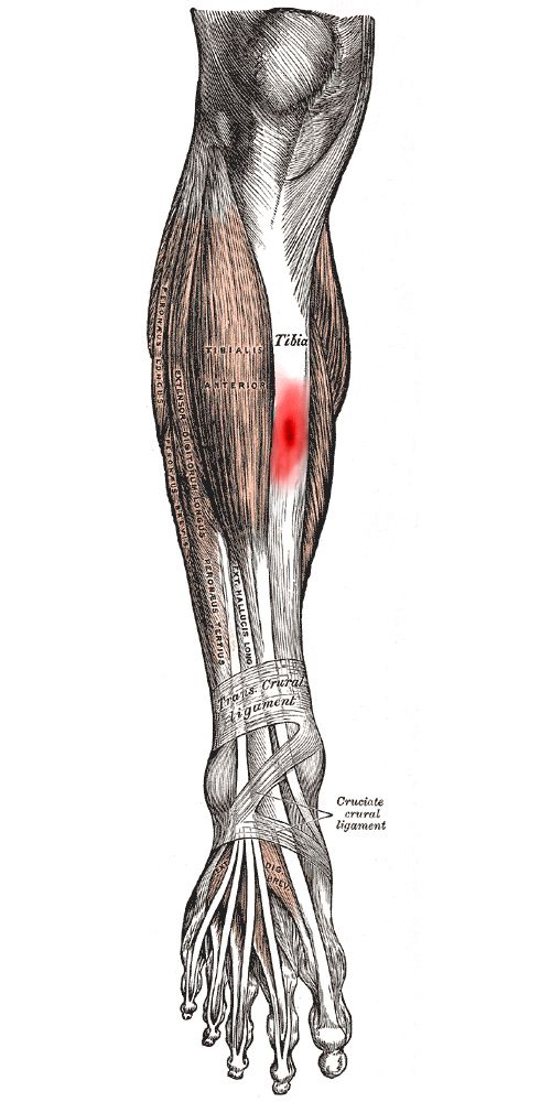 Running writings: Injury Series: Tibial stress fractures and stress ...