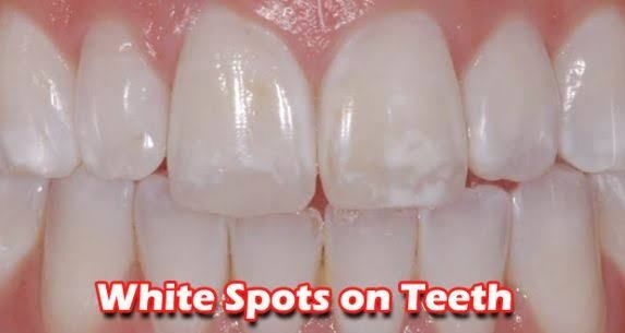 b98fe6f4177d890798be8774cdef2b40 - How To Get Rid Of White Spot Lesions On Teeth